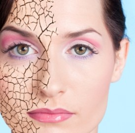 Inverno e o ressecamento da pele