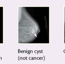 Mamografia, eu fiz.