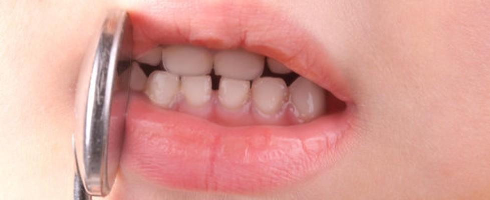 Seu filho caiu e quebrou o dente?